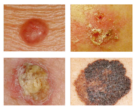 tipos de cancer de piel carcinoma basocelular